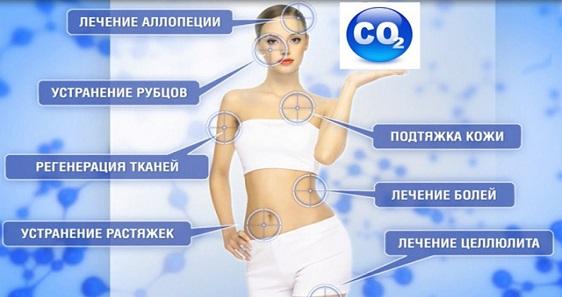 Карбокситерапия